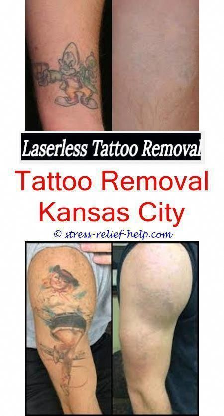 How Do Permanent Tattoos Get Removed How Much Does It Cost To