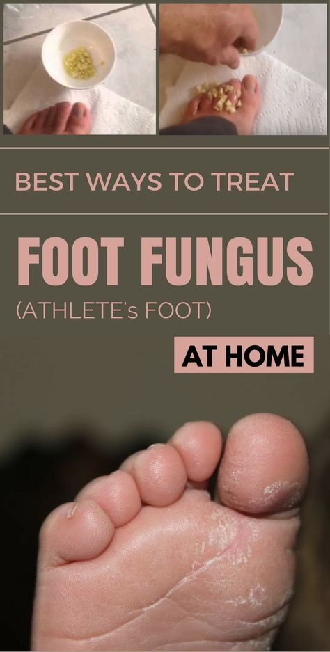Best Ways To Treat Foot Fungus Athlete S Foot At Home Itchy Feet Remedy Dry Cracked Feet Foot Remedies