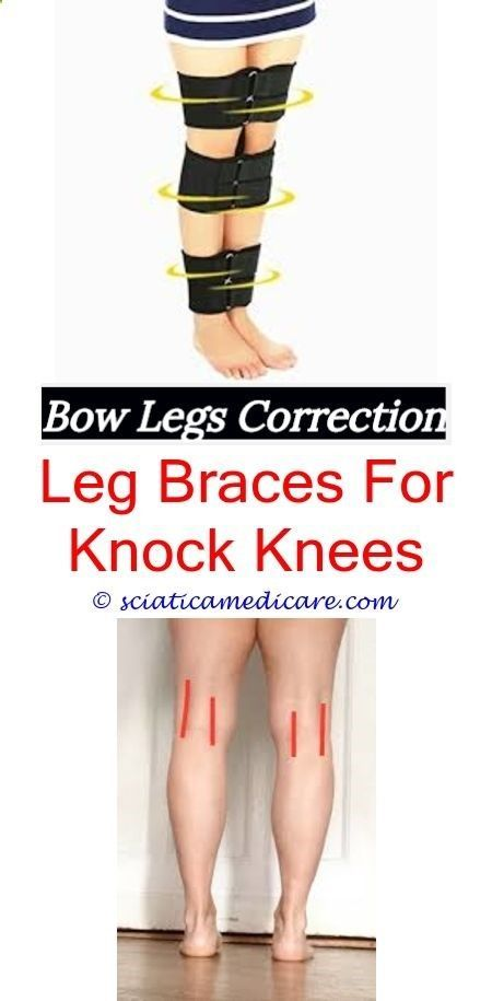 bow knees how do you fix bow legged - what causes a dogs