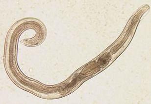 pinworms morfológia)