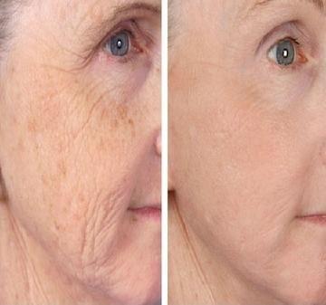 hogyan lehet megszabadulni a vörös foltoktól az arc kopása után pikkelysömör térd és könyök kezelés