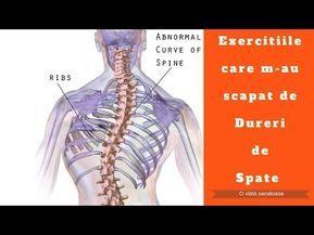 Scolioza: diagnostic si tratament