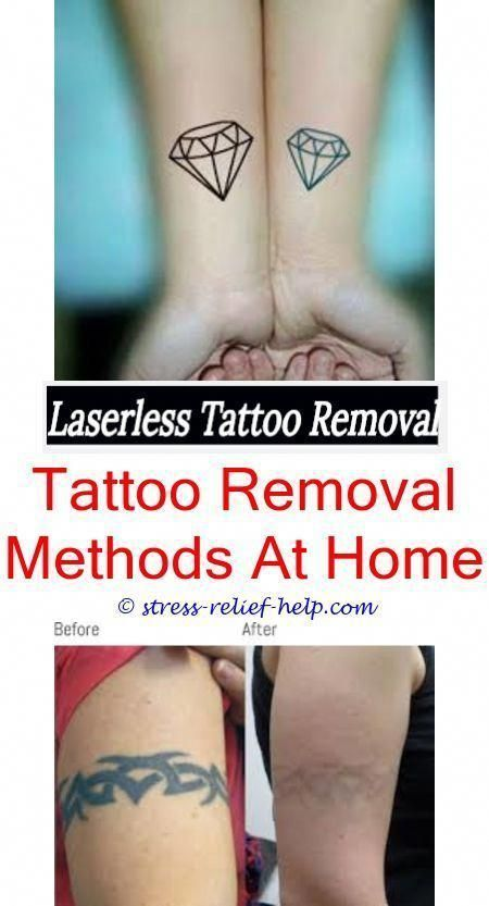 Black Tattoo Removal How Much To Remove Tattoo With Picosure Does Tattoo Removal Really Work Tattoo Cover Up Quickest Way To Remove A Tattoo How To Remove Hen Tattooentfernung Tattoos Radiergummis