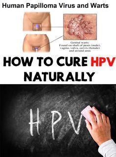 papilloma virus cure alternative)