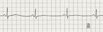 بطء نبض القلب هو عندما يكون معدل ضربات القلب أقل من ستين نبضة في الدقيقة يتراوح معدل نبض القلب الطبيعي ما بين ستين ومائة نبضة في الدقيقة Chart Blog Math
