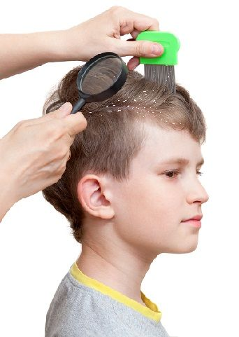 10 Safe Home Remedies To Treat Dandruff In Kids Styles At Life Home Remedies For Dandruff Dandruff In Kids Dandruff Remedy