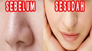 Cara Menghilangkan Jerawat Dan Komedo Di Hidung Secara Alami