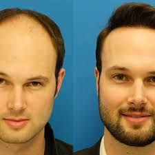Pin by OSS Team on Adon Clinic in 2019   Hair growth