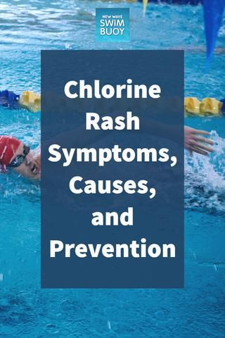 Chlorine Rash Symptoms Causes And Prevention Rash Symptoms
