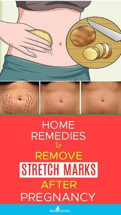 16 Working Home Remedies To Reduce Stretch Marks After Pregnancy How To Remove Stretch Marks After Pregnancy: 16 Home Remedies & Medical Treatments Stretch Mark Remedies, Stretch Mark Removal, Postnatales Training, Reduce Stretch Marks, How To Get Rid Of Stretch Marks, Baby Care Tips, Pregnancy Care, Pregnancy Info, Beauty Tips After Pregnancy