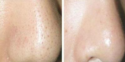 como limpiar los poros abiertos de la nariz