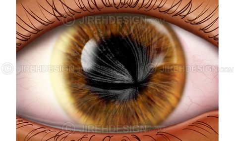 11 best Eye Conditions \ Diseases Illustrations from JirehDesign - presumed ocular histoplasmosis