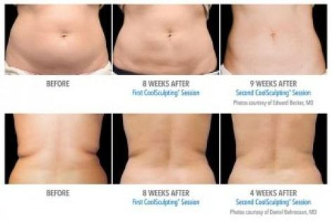 Kill Fat Cells Instantly Just By Freezing Them! #Various #Trusper #Tip