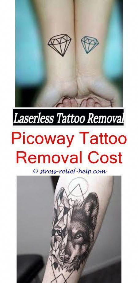 Half sleeve tattoo removal cost Tattoo removal florida Did