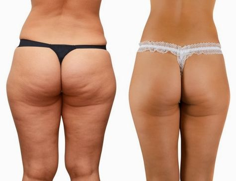 Great article about cellulite and what causes it. She even includes a diet plan with workouts to get rid of cellulite.