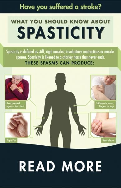 Limited coordination and muscle movement and painful muscle spasms in your arms and legs (spasticity) can happen as a result of a stroke. Get information on the types, treatments, and tips for living with spasticity.