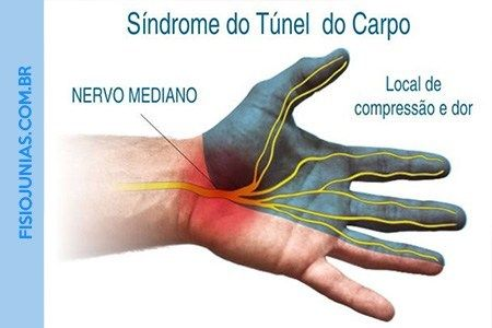 Sindrome Do Tunel Do Carpo Com Imagens Tunel Do Carpo Nervo