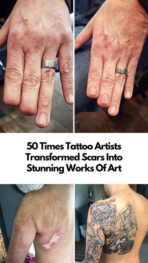 These tattoo artists transformed scars and birthmarks into stunning works of art.  #art #tattoos #artists #inspiring