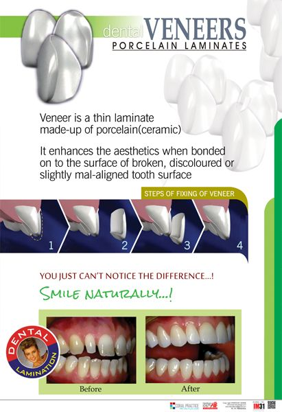 Dental Posters In India Dental Clinic Posters In India Smartdoc Dezine In 2020 Dental Veneers Dental Posters Dental