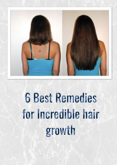 6 Best remedies for incredible hair growth - Natural care