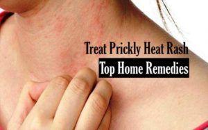 aa337d1b1ac70e81a2283a6875f912bb - How To Get Rid Of Prickly Heat In Babies