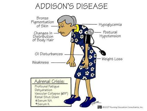 Addison's disease - symptoms of HYPOnatremia; Addison is hyposecretion of the adrenal hormones. AKA: Primary adrenocortical insufficiency