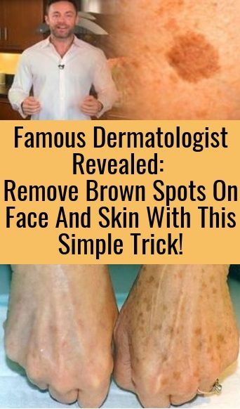 Famous Dermatologist Revealed: Remove Brown Spots On Face