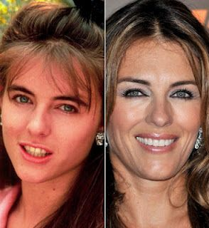 Chatter Busy: Elizabeth Hurley Surgery
