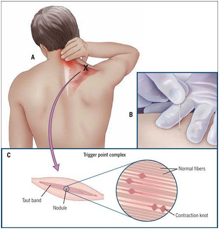 How To Get Rid Of Knots In Neck And Shoulders