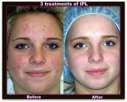 skin light cream before and after