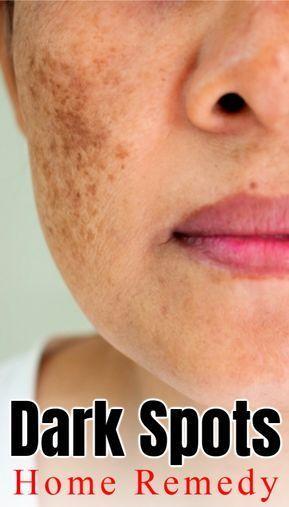 Dark Spots Home Remedy Skin Skincare Skincareroutine Skincaretips Selfcare Selfcaretips Beauty Beautyti In 2020 Skin Spots Remove Dark Spots Dark Spots On Skin