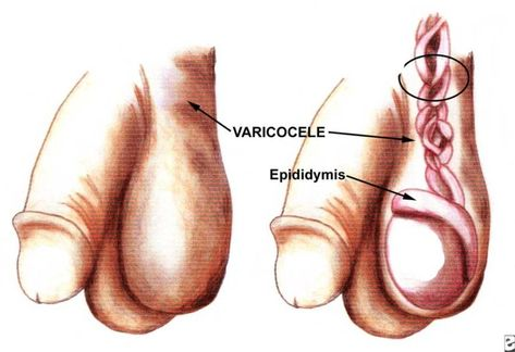 Esterilidad Masculina. Diagnostico Varicocele | Esterilidad ...