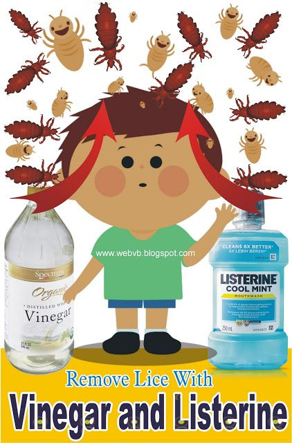 How To Get Rid Of Lice With White Vinegar