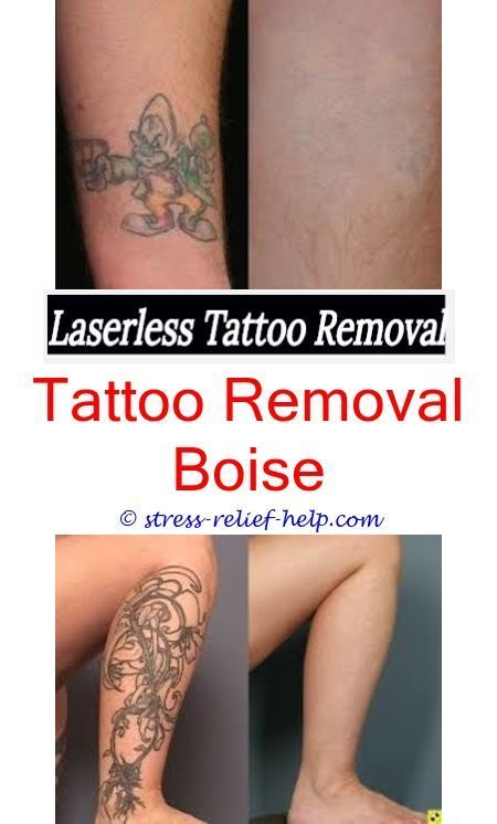 How Much Would It Cost To Remove A Small Tattoo Where Can I Buy Rejuvi Tattoo Re Tattoo Removal Tattoo Removal Tattoo Removal Cream Tattoo Removal Cost