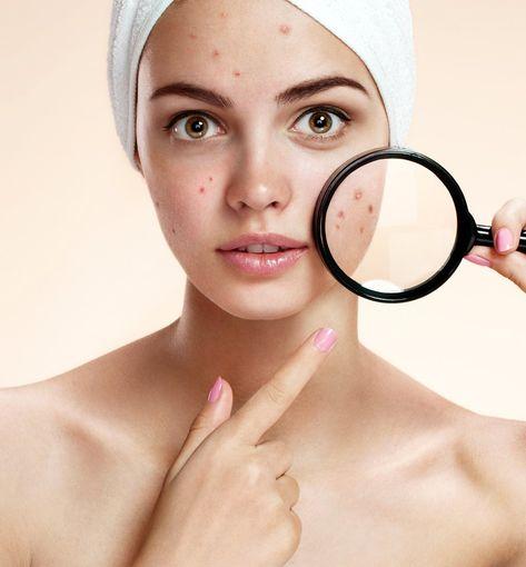 Pimples: the Breakout Breakdown
