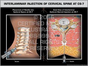 Epidurography & Injection of Lumbosacral Spine   Yoga poses