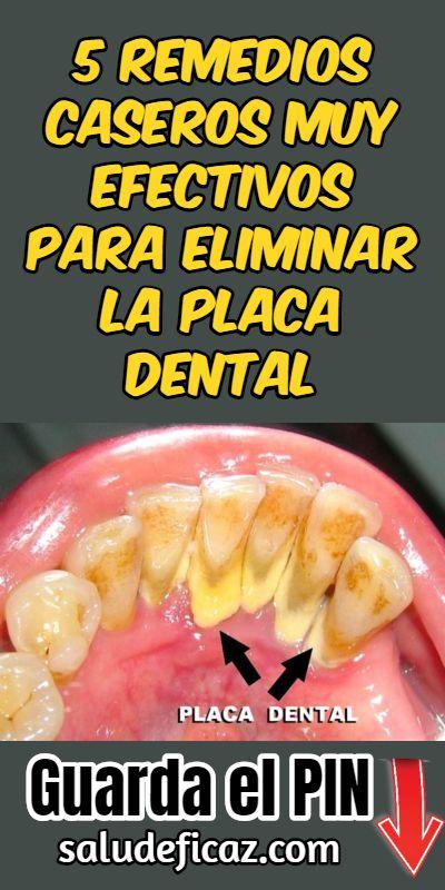 5 Remedios Caseros Muy Efectivos Para Eliminar La Placa Dental Dental Health Dental Body Health