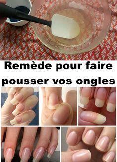 Comment faire pousser vos ongles plus vite en seulement 8 jours avec ce remède naturel puissant