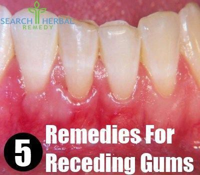 Receding gums is a medical condition in which the gums are