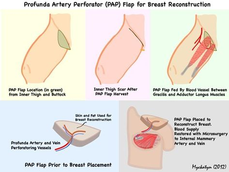 pap-flap | breast cancer, surgery and reconstruction | pinterest, Cephalic Vein