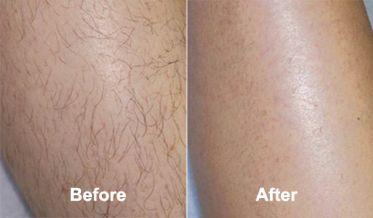Lucent Skin Hair Removal Melinda S Trending Goods Hair Removal