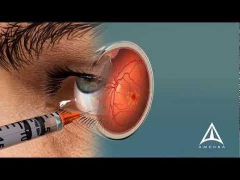 Lucentis Vs Avastin for Treating Macular Degeneration The eyes