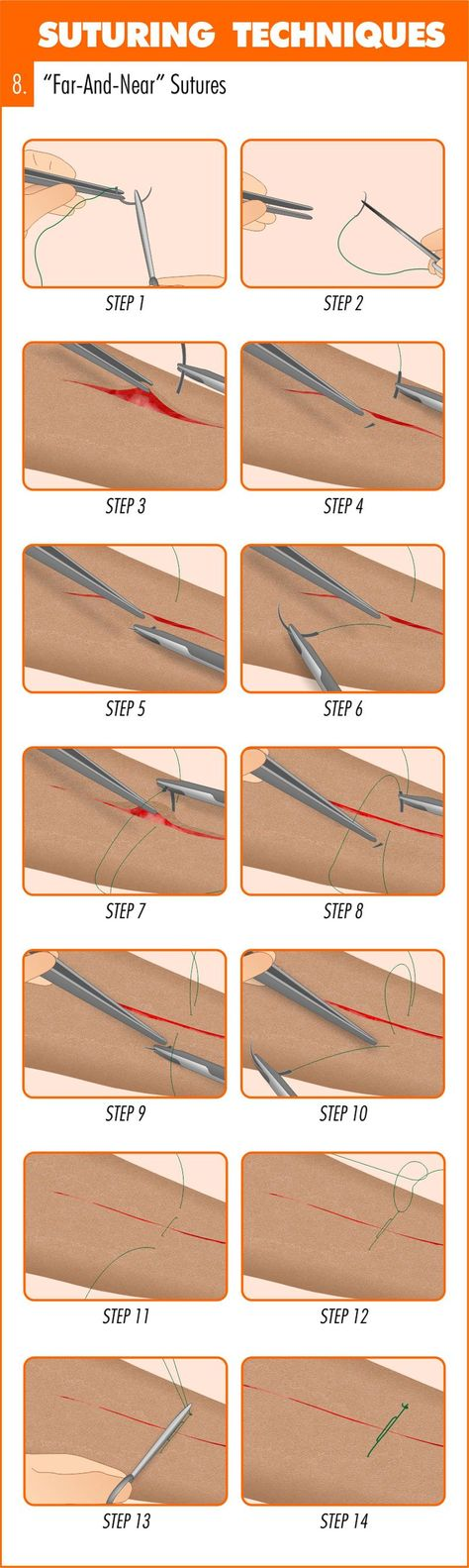 This (infographic) guide runs you through an introduction to suturing before taking you step-by-step through how & when to place 11 suturing techniques. This is great for ANYONE to know, just in case. Survival Life Hacks, Survival Prepping, Emergency Preparedness, Survival Skills, Survival Gear, Apocalypse Survival, Zombie Apocalypse, Doomsday Survival, Zombies Survival