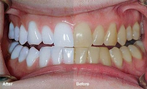 Retrouvez un sourire éclatant grâce à cette méthode naturelle !