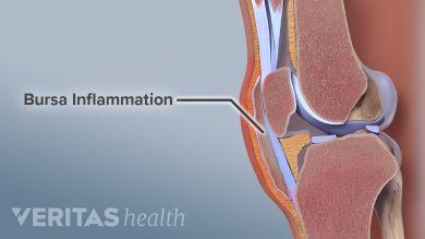 What Causes A Swollen Knee Water On The Knee Types Of Arthritis Swollen Knee Rheumatoid Arthritis Treatment
