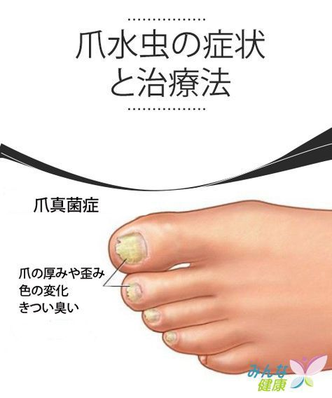 爪 親指 臭い の 足