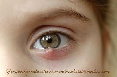 Guaranteed Way To Get Rid Of An Eye Stye Fast At Home Eye Stye