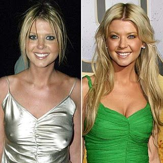 Tara Reid Plastic Surgery Before And After Photos, Pictures Are Available Here So That You Can Make A Better Comparison Between Her Then and now Appearances. Tara Reid Liposculpting Surgery Gone In Favor.
