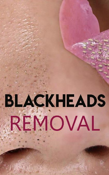Blackheads are the most annoying and irritating skin problems that we all are faced with. It can affect all skin types and all stages of the ages. Blackheads are painful and they are hard to get rid of them. #blackheads #blackheadsfornose #nose #naturalremedy #getridofblackheads #skincare #skincaretips #skincareroutine #healthyskin #skinglow #glowingskin #removebblackheads