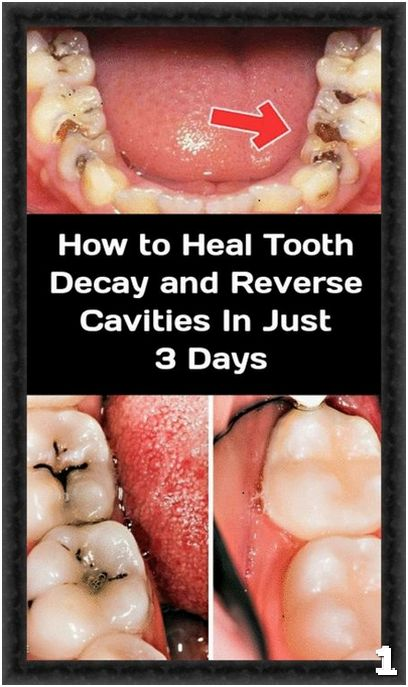 The Only 6 Natural Remedies You Need To Heal Tooth Decay And Cavities Reverse Cavities Tooth Decay Tooth Decay In Children